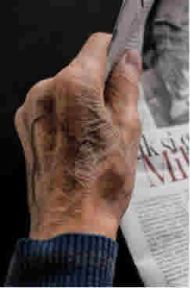 Causes of Wrinkled Hands and How to Avoid Them